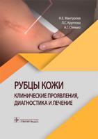 Рубцы кожи. Клинические проявления, диагностика и лечение