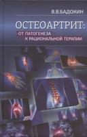 Остеоартрит: от патогенеза к рациональной терапии